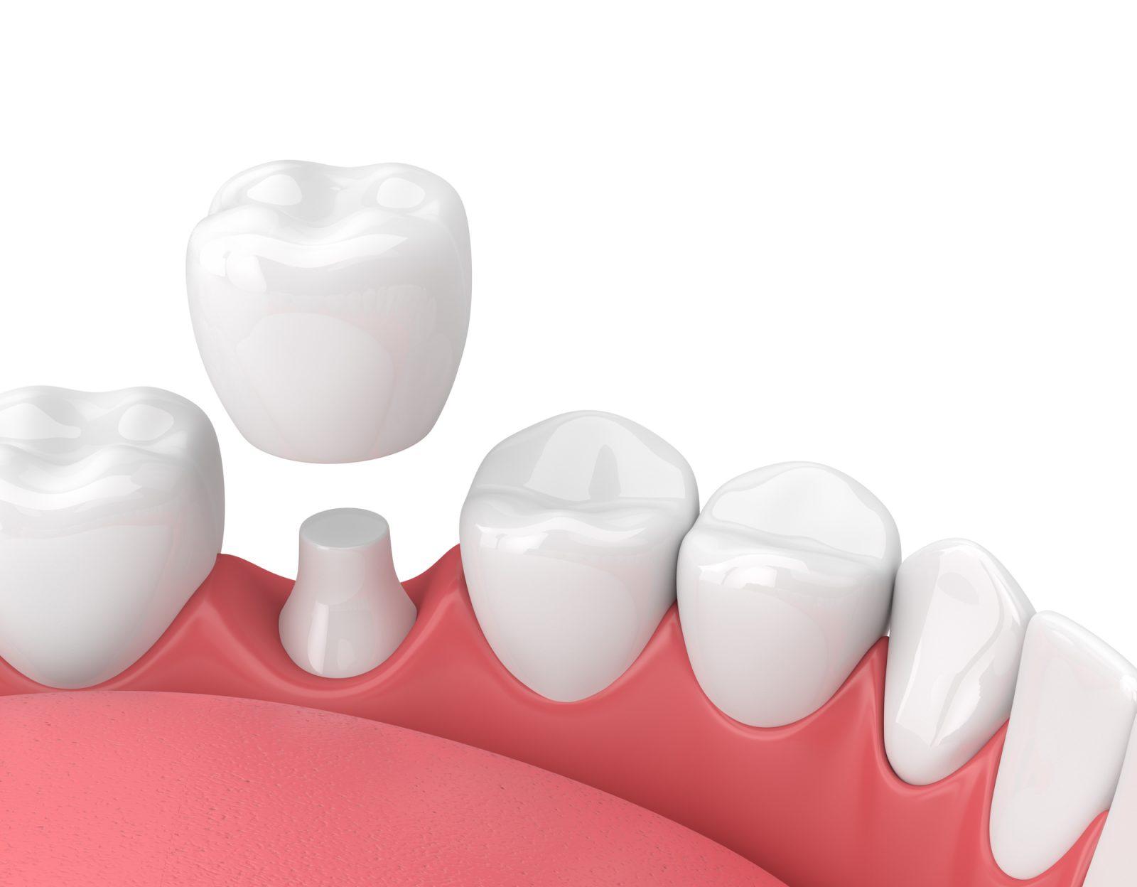 Implant dentaire : comment expliquer sa mise en place ?